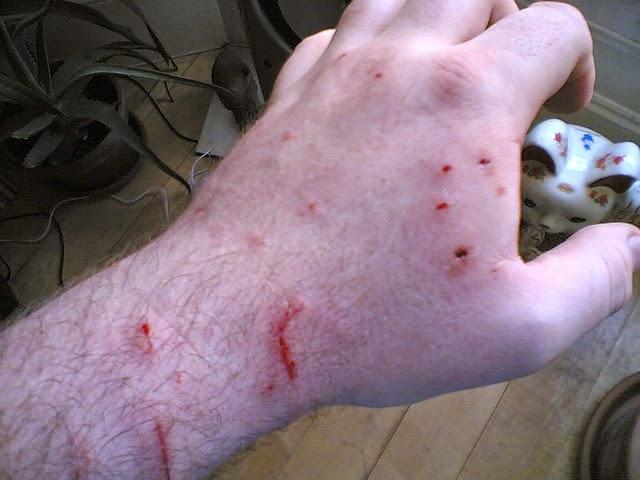 Một vết căn do chó, mèo gây ra trên người.