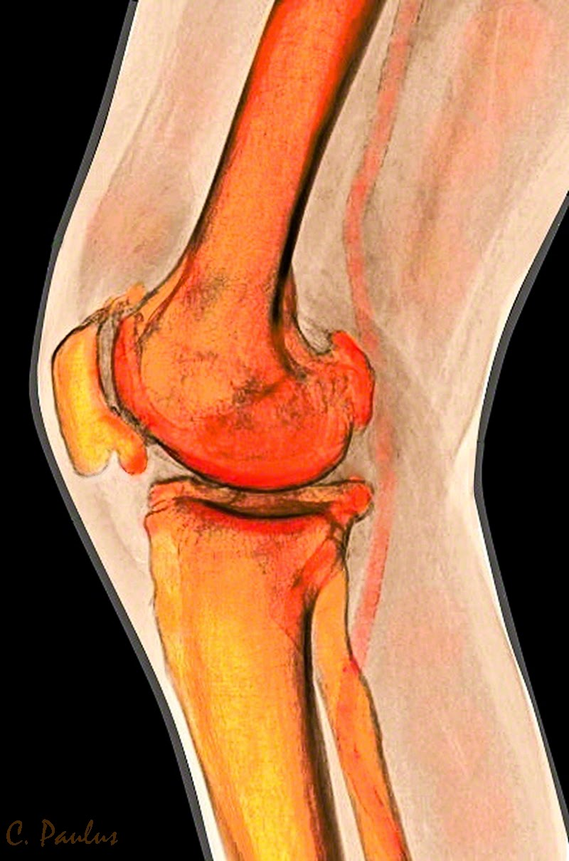 Lateral Color Knee X-Ray Image showing Chondrocalcinosis