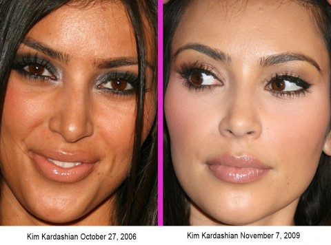 Kardashian Fake on Kim Kardashian Before And After   Simply4dreams