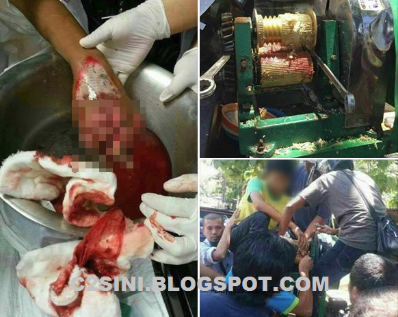 Nggeri Remaja hancur 4 jari diperah mesin tebu