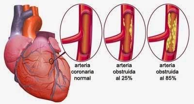 Semiologia de la insuficiencia cardiaca 2014