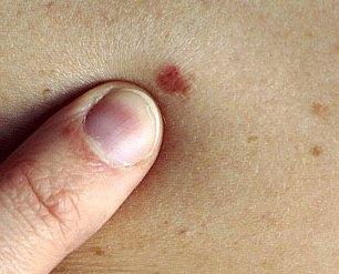 Basal skin cancer
