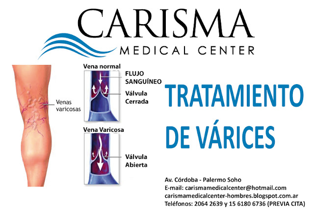 Tratamiento de venas faciales LASER AND VEINS