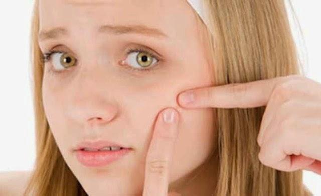 cara merawat wajah berjerawat