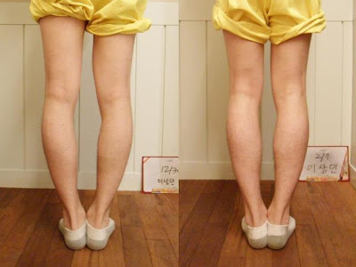 Bow Legs Correction, Bow Legs Correction without Surgery