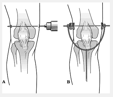 Femur Skeletal Traction http://lesdoup.blogspot.com/2012/08/closed-reduction-casting-and-traction.html