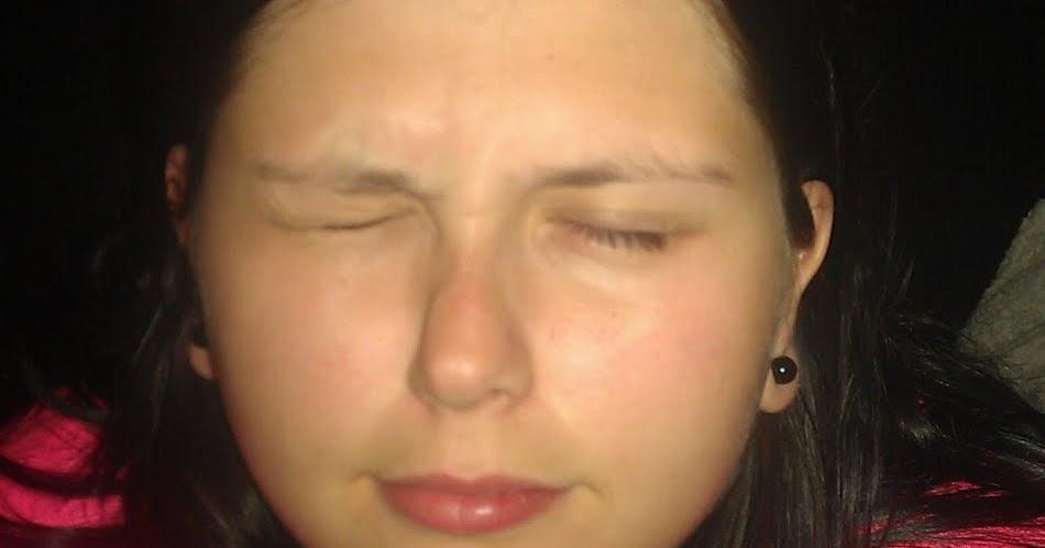 nervryckningar i läpparna