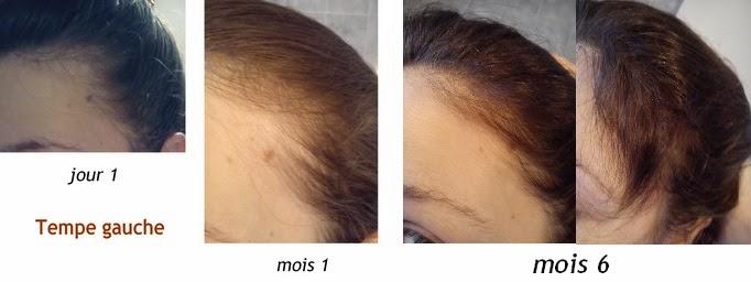 biotine bepanthene cheveux