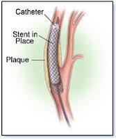 pemasangan cincin stent jantung, Blog Keperawatan