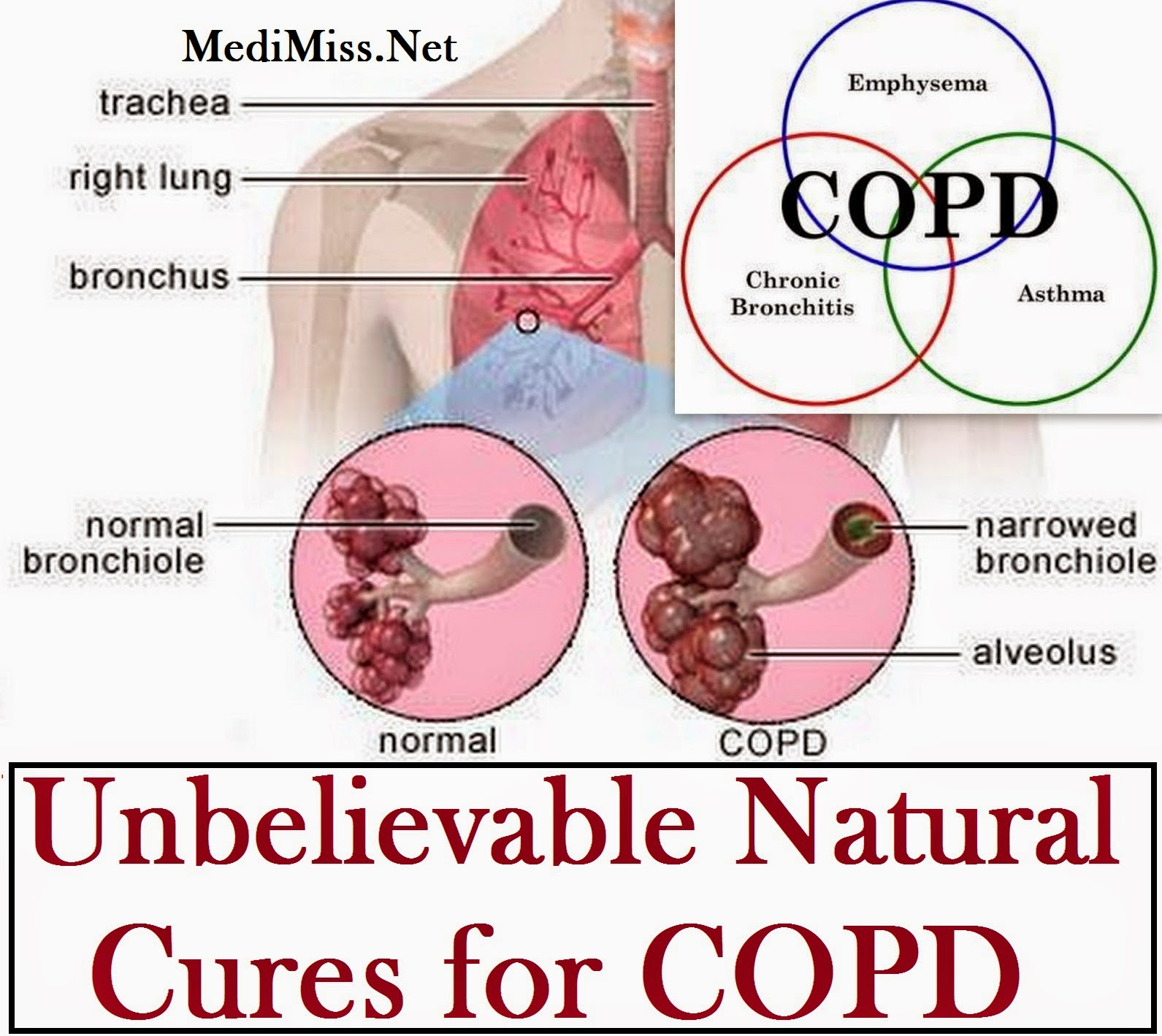 Natural Remedies For Copd Symptoms