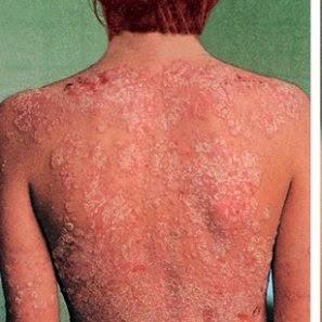 la psoriasis y sus remedios naturales