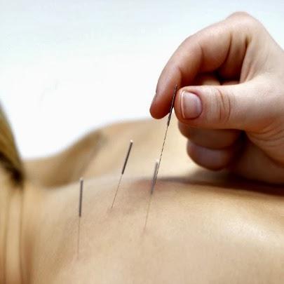 Cancer de mama, acupuntura auxilia no tratamento