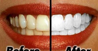 Gunakan Cara Ini Untuk Memutihkan Gigi Scara Alami