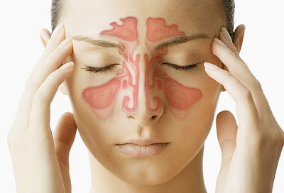 Sinusitis, Pengobatan Sinusitis
