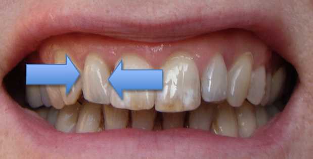 remove braces from pictures