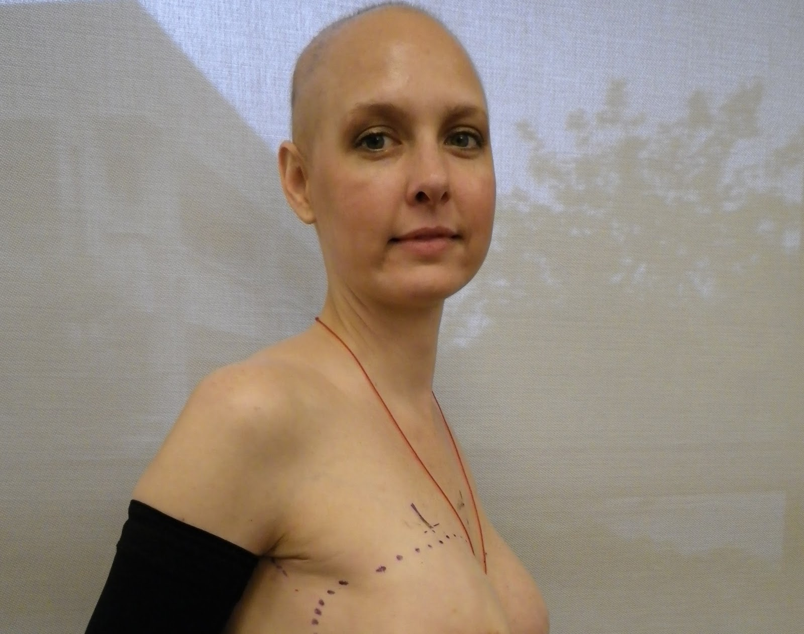 why i want to be a radiation therapist essay Radiation therapy major: information and requirements radiation therapists treat cancer in patients by administering radiation to cancer cells.