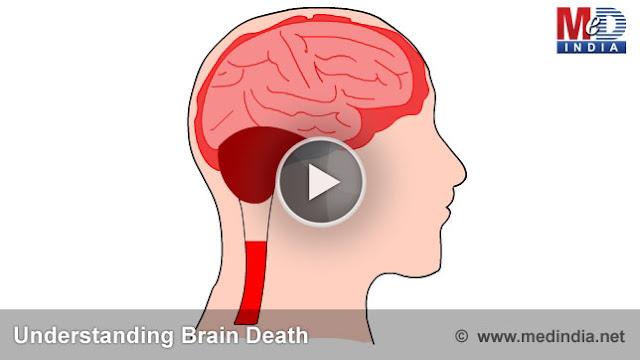 Brain Death4