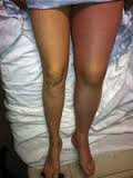 leg swelling