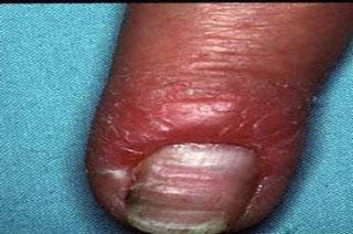Perionixisul microbian: cauze, simptome, tratament