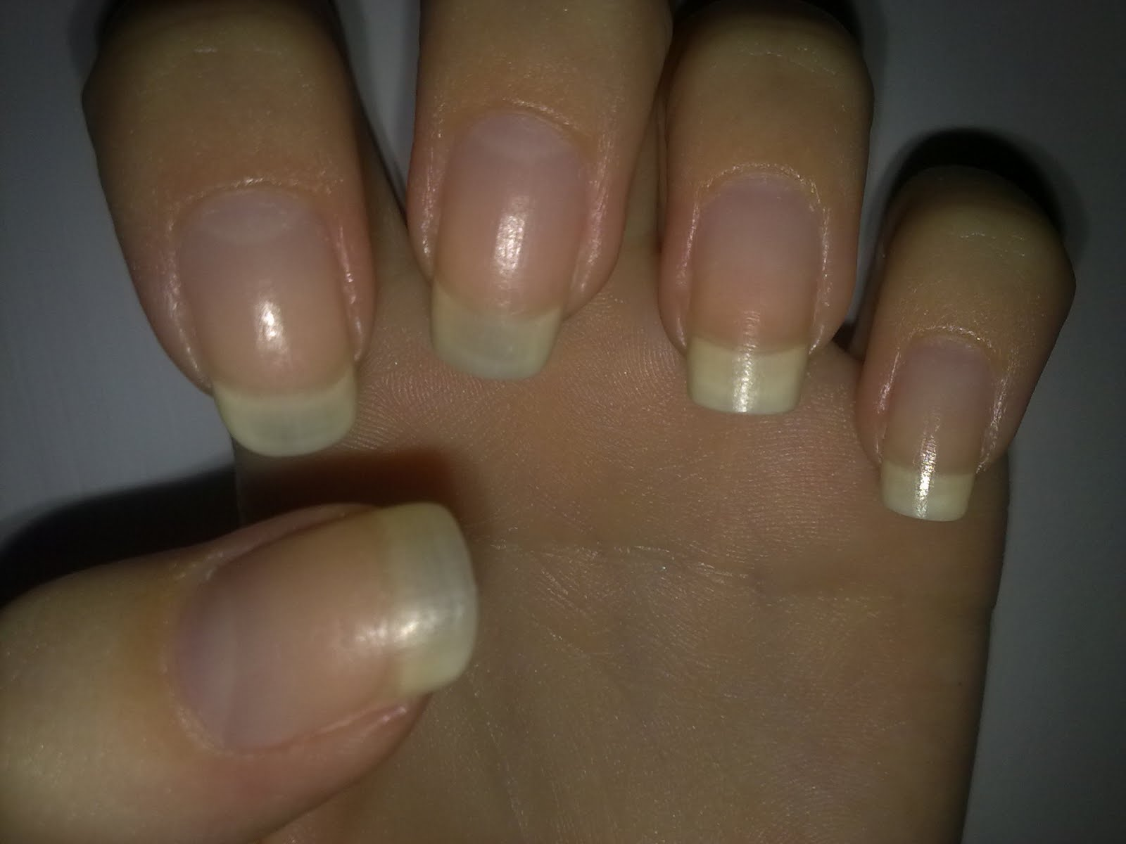 Took Off Nail Polish And Nails Are White - Absolute cycle