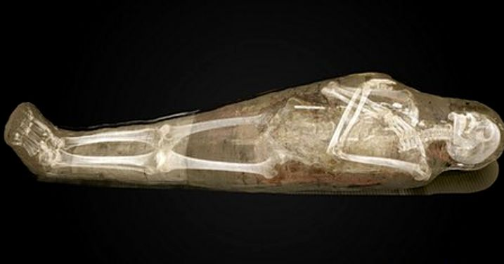 Swedish Museum exhibit allows visitors to virtually unwrap mummies