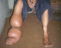 Penderita Penyakit Kaki Gajah