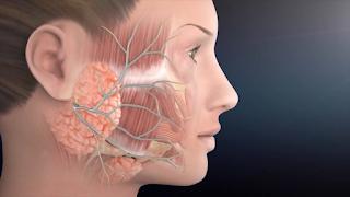 Saiba mais sobre a Paralisia Facial por fratura