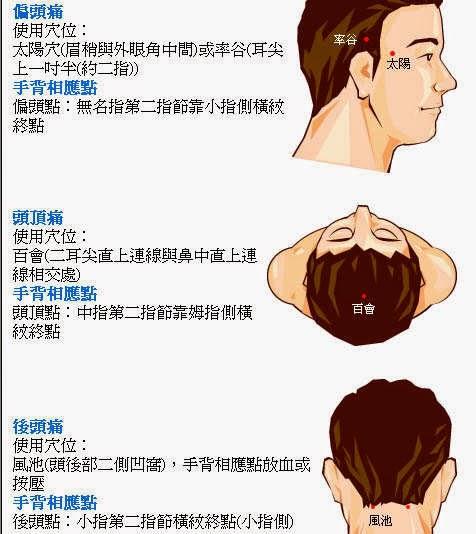 左側 頭痛