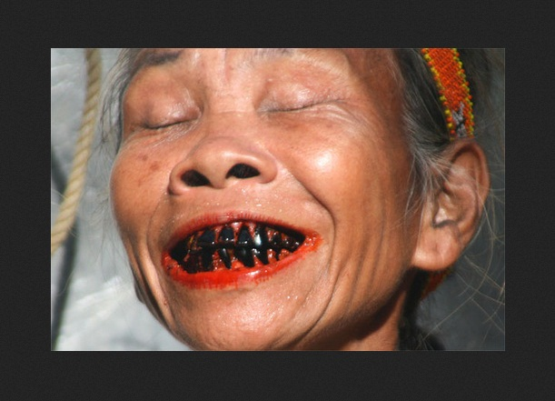 sore teeth