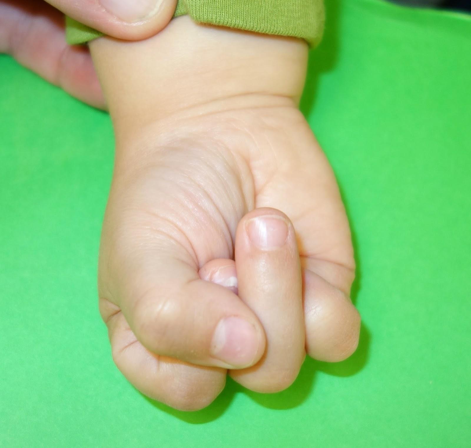 http://1.bp.blogspot.com/-5JwU7ghB_yQ/Un0YWjsCvFI/AAAAAAAAA38/xoGcVv868v4/s1600/cleft+right+fist.jpg
