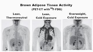 Φαιός λιπώδης ιστός: Η λύση για την παχυσαρκία;