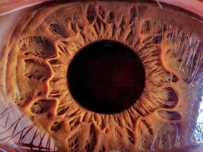 Распахнутый глаз 16-летнего мальчика из Еревана — настоящий венец творения. На этом многократно увеличенном снимке радужной оболочки черный омут в центре — зрачок, а на роговице проступает отражение ресниц. Все это обрамлено розовыми дугами век сверху и снизу. © Сурен Манвелян
