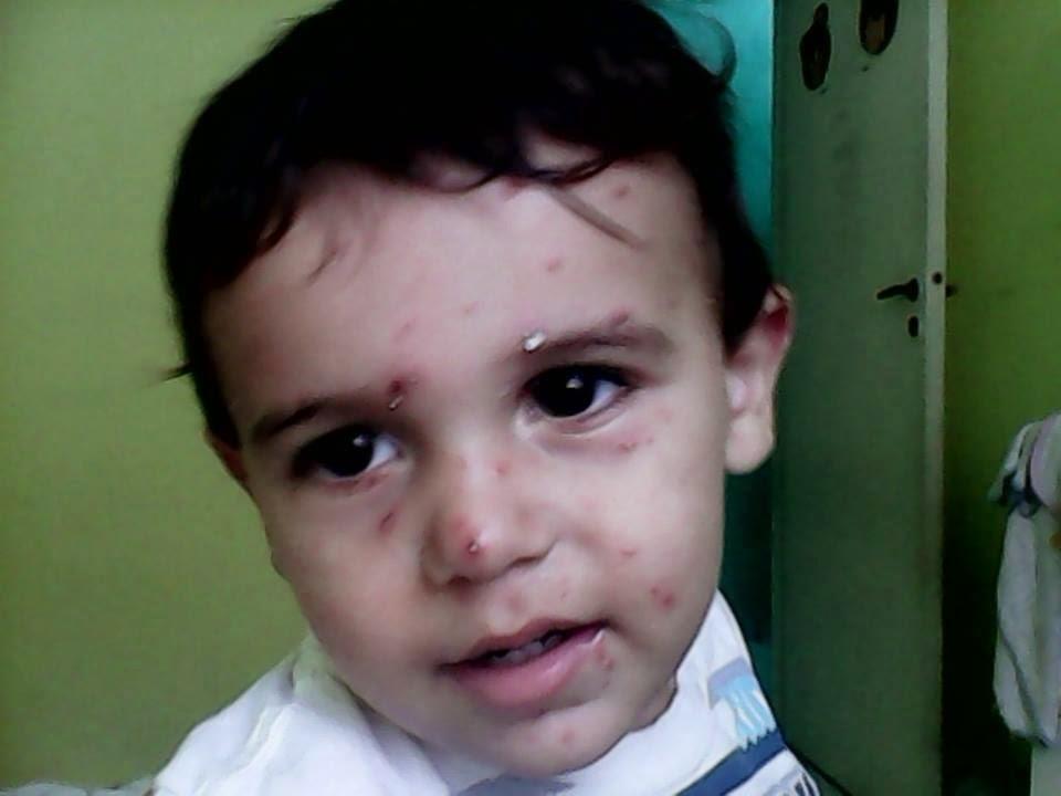 Guarulhos - Médico Nega Atestado para Mãe Cuidar dos Filhos com Catapora