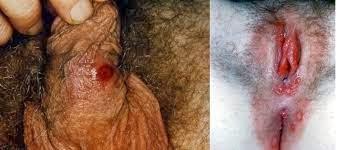 gambar penyakit sipilis