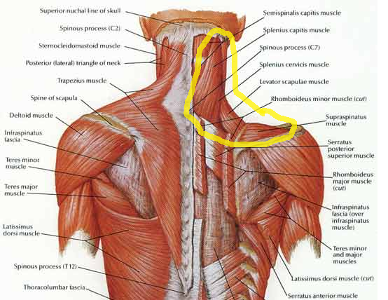Image result for pulled neck muscles blogspot.com