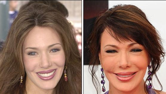 Stars Cosmetic Surgery: Hunter Tylo Plastic Surgery Boob Jobs, Facelift, Nose Job and Botox Injections Before and After