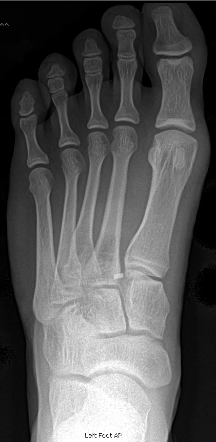 Year Old Normal Foot X Ray Car Tuning