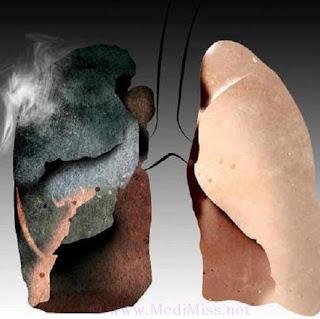 Heart Attack and Smoking
