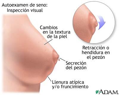 Los síntomas a la ruptura de pecho implanta