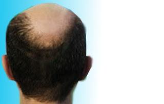 Cara Menumbuhkan Rambut, Cara Menumbuhkan Rambut Secara Alami