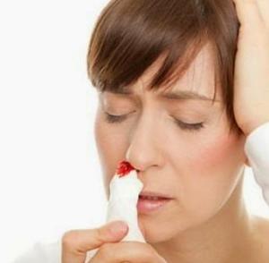 tips mengatasi mimisan secara cepat dan alami
