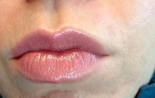 Contouring under lip