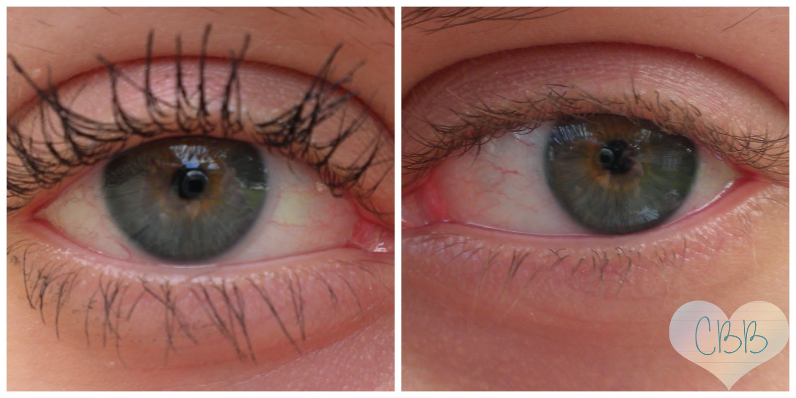 Normal Eyelashes Vs Distichiasis 1065