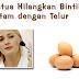 Petua Hilangkan Bintik Hitam Dengan Telur
