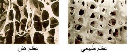 كيفية تجنب مرض هشاشة العظام