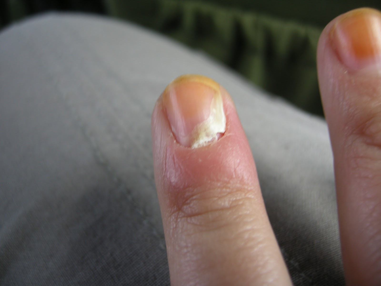 Exelent Infection On Finger Near Nail Pattern - Nail Art Ideas ...