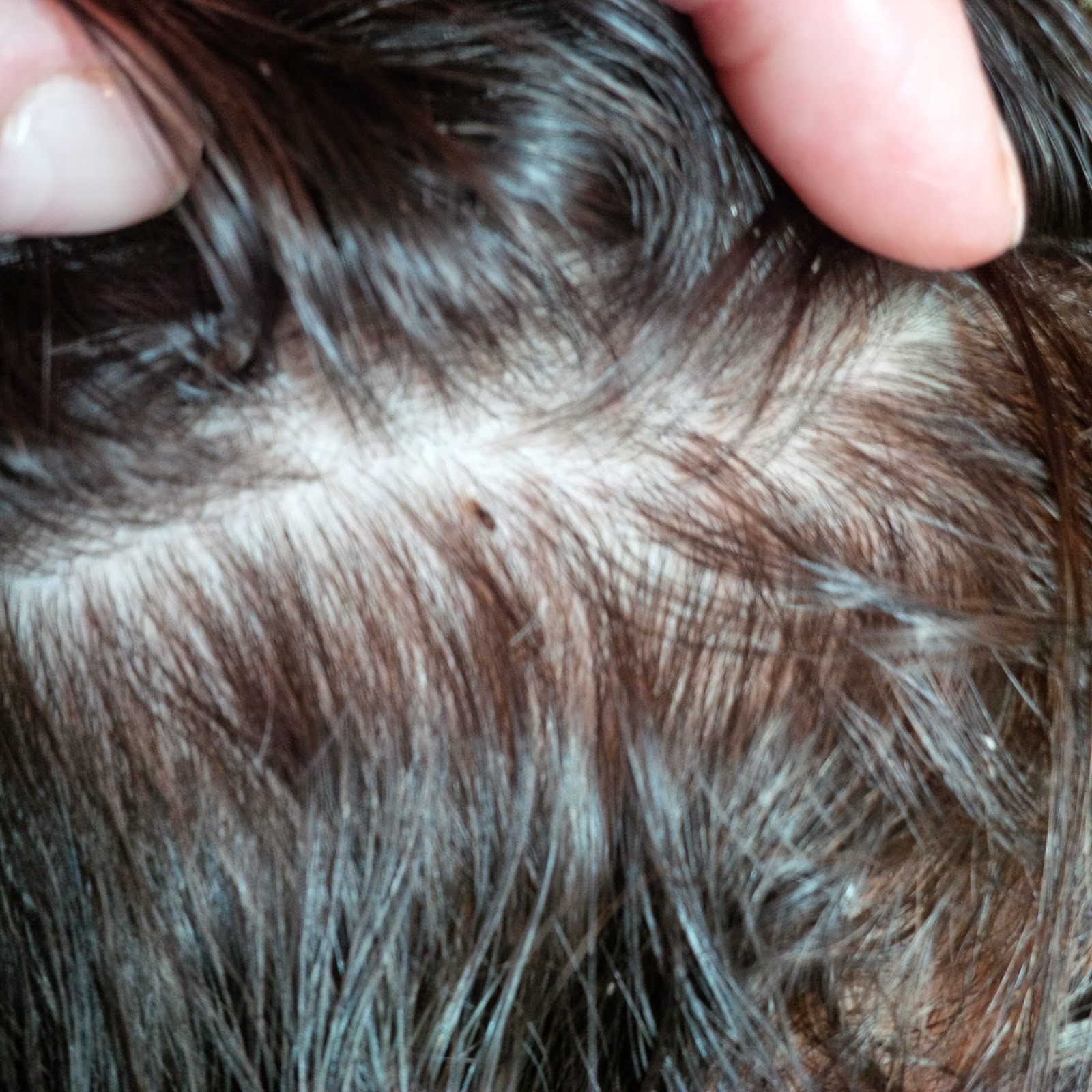 how to tell lice eggs from dandruff