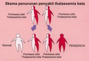 Cara Mengobati Penyakit Thalassemia pada anak dan bayi secara Alami