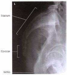 radiograph with lable