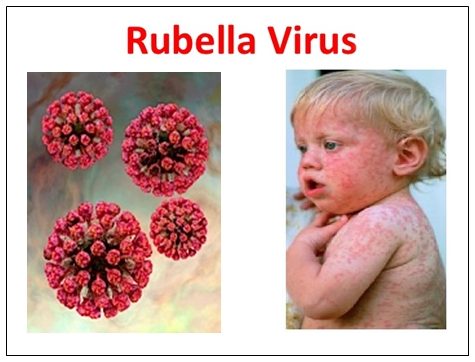 Pengobatan Herbal Mengatasi Virus Rubella